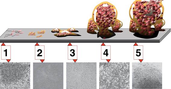 Os biofilmes bacterianos podem oferecer grande risco no processamento de instrumentos cirúrgicos. Veja como evitar!