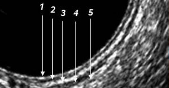 Tratamento do tumor de reto com ultrassom anorretal 3D