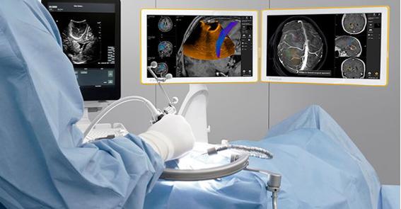 Conheça os principais benefícios do uso das imagens do ultrassom BK Medical em procedimentos de neurocirurgia.